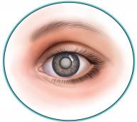 Вікова катаракта і лікарська терапія: можливості й виклики для місцевої доставки антиоксидантів до кришталика